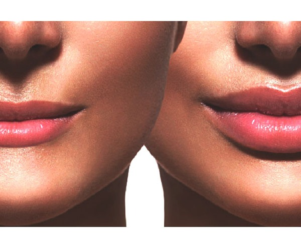 Before and after lip filler injections. Lips closeup over white_1548875312118
